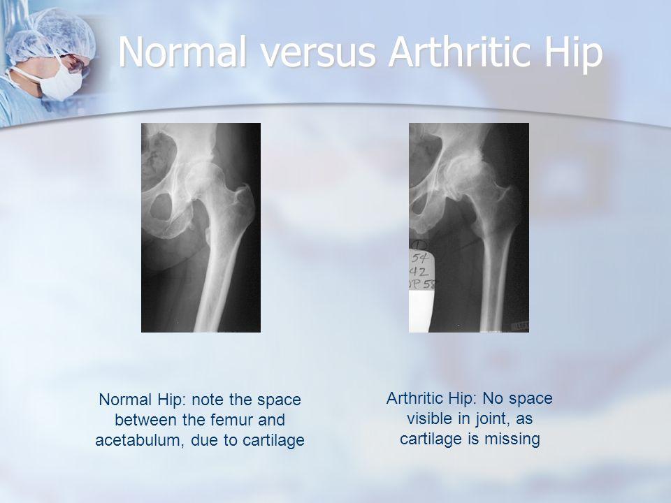 Normal versus Arthritic Hip