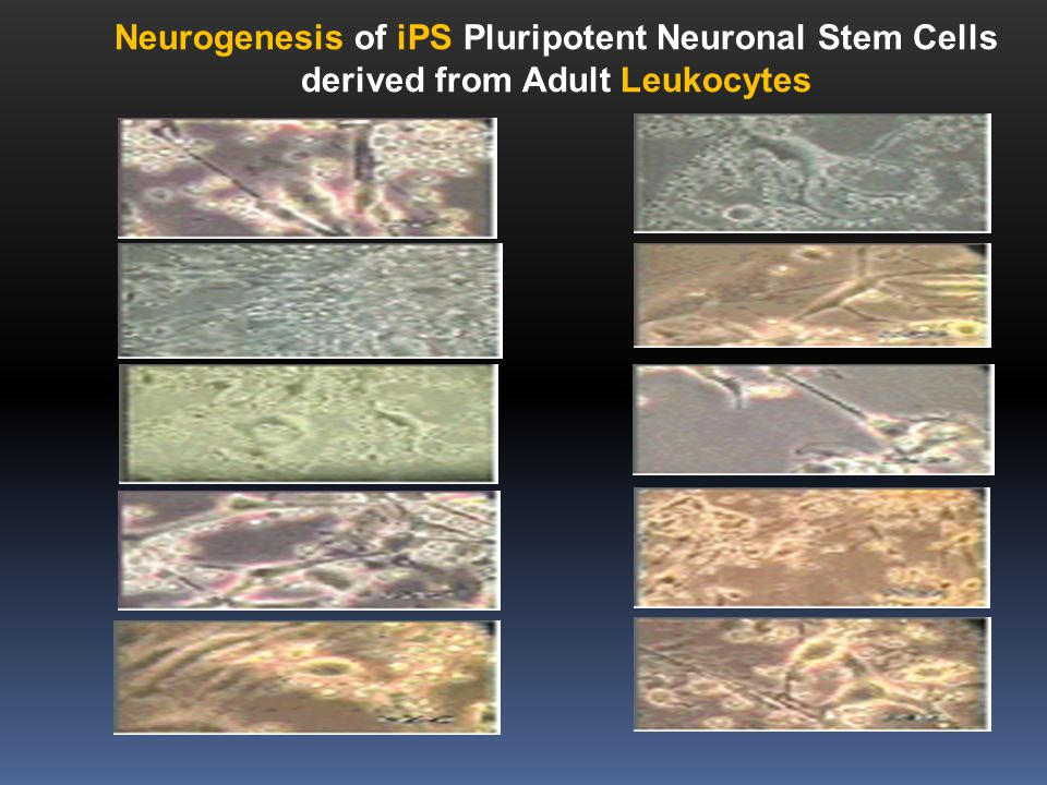 Neurogenesis of iPS Pluripotent Neuronal Stem Cells derived from Adult Leukocytes