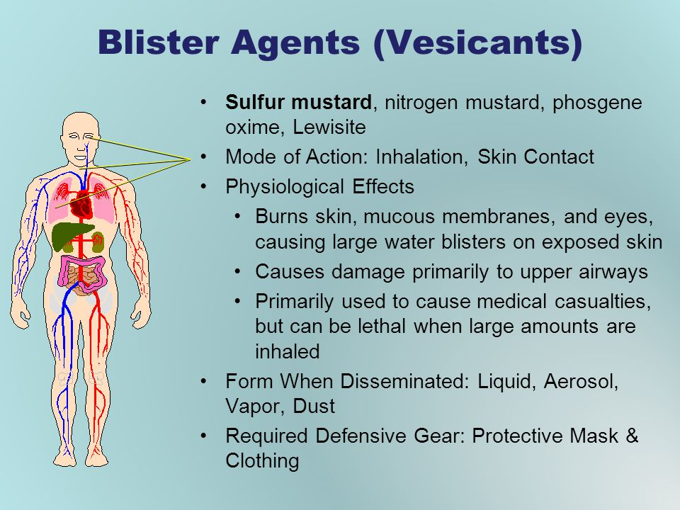 Blister Agents (Vesicants)