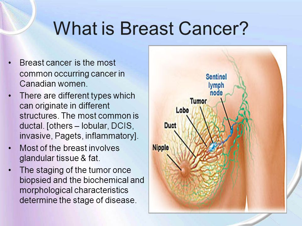 What is Breast Cancer Breast cancer is the most common occurring cancer in Canadian women.