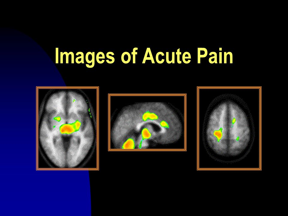 Images of Acute Pain