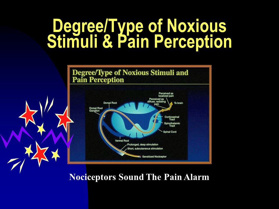 Degree/Type of Noxious Stimuli & Pain Perception