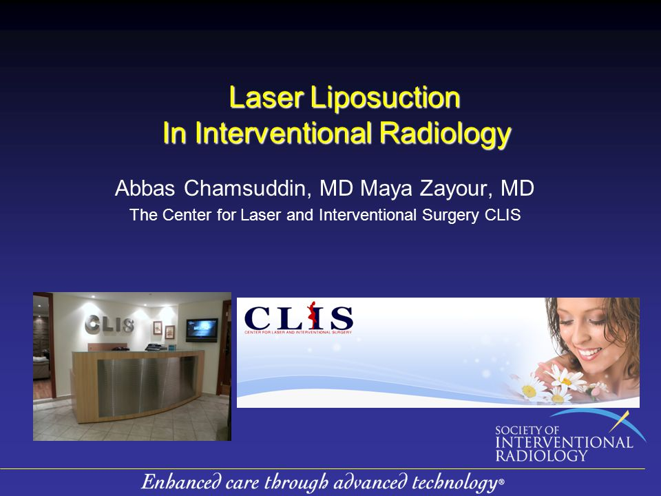 Laser Liposuction In Interventional Radiology