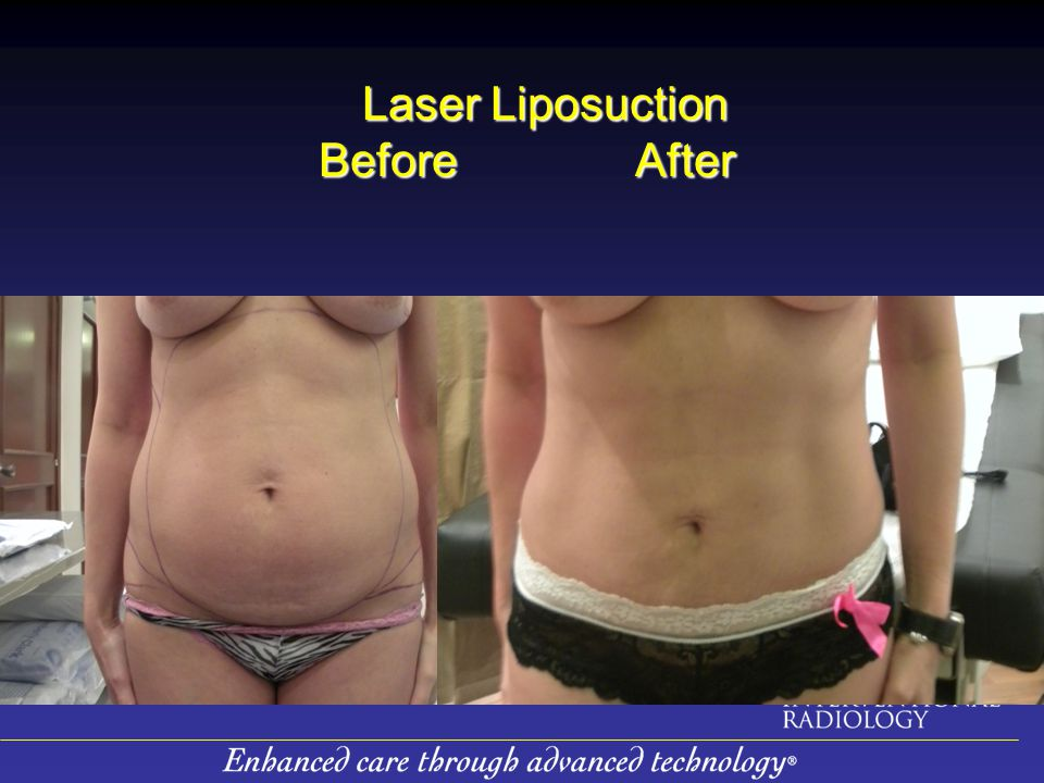 Laser Liposuction Before After