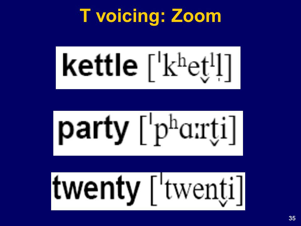 T voicing: Zoom