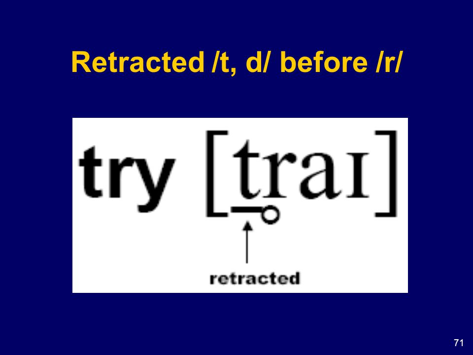 Retracted /t, d/ before /r/