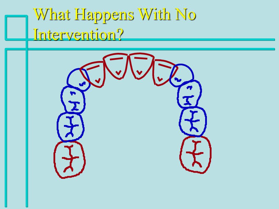 What Happens With No Intervention