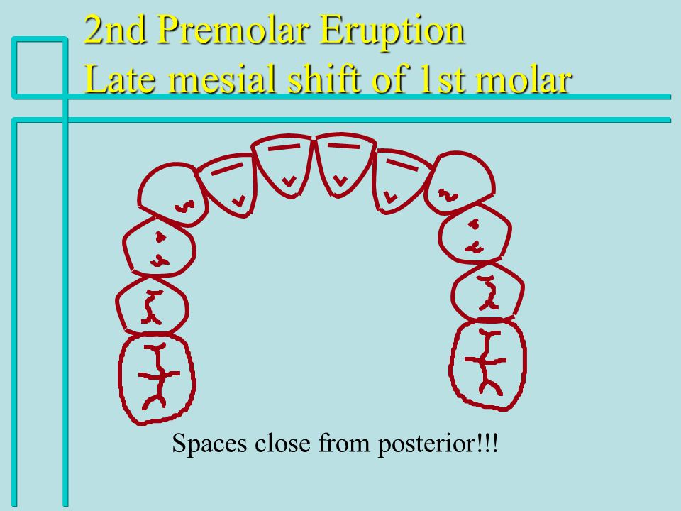 Spaces close from posterior!!!
