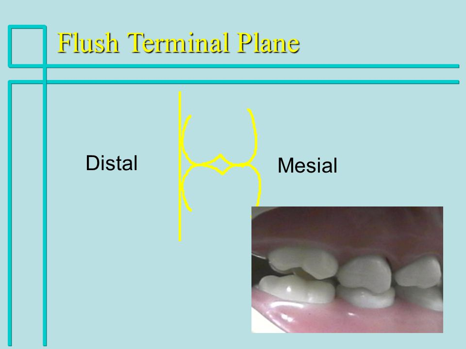 Flush Terminal Plane Distal Mesial