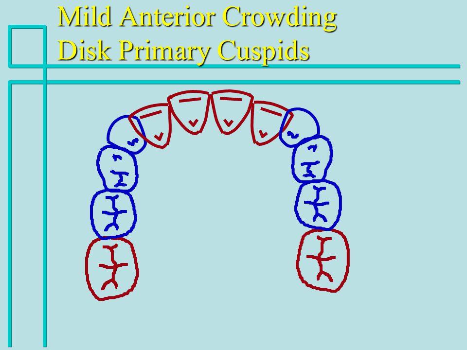 Mild Anterior Crowding Disk Primary Cuspids