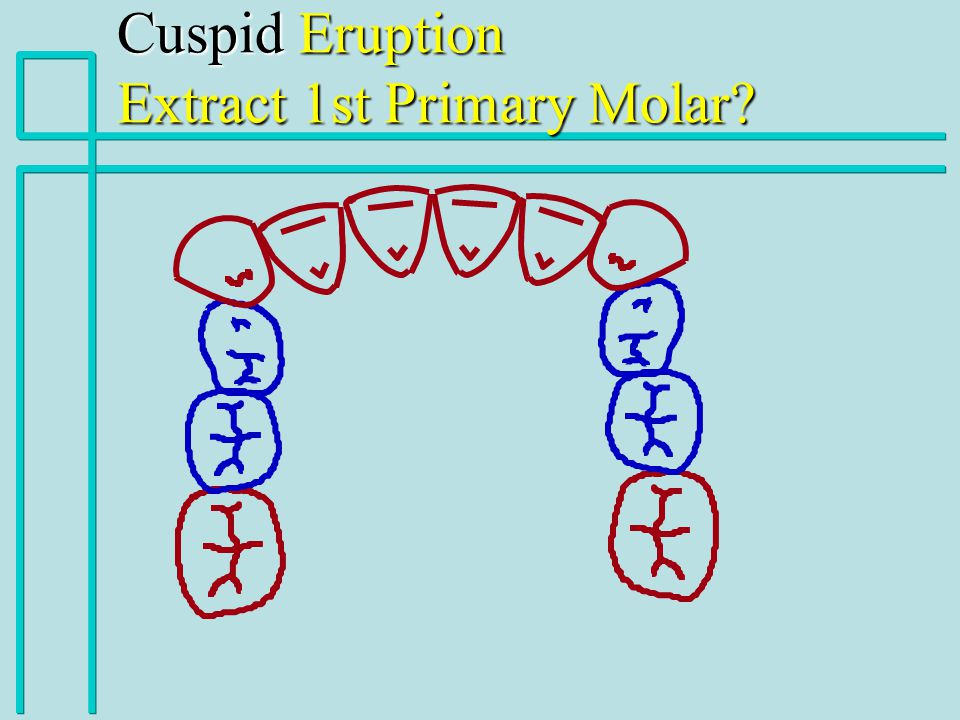 Cuspid Eruption Extract 1st Primary Molar