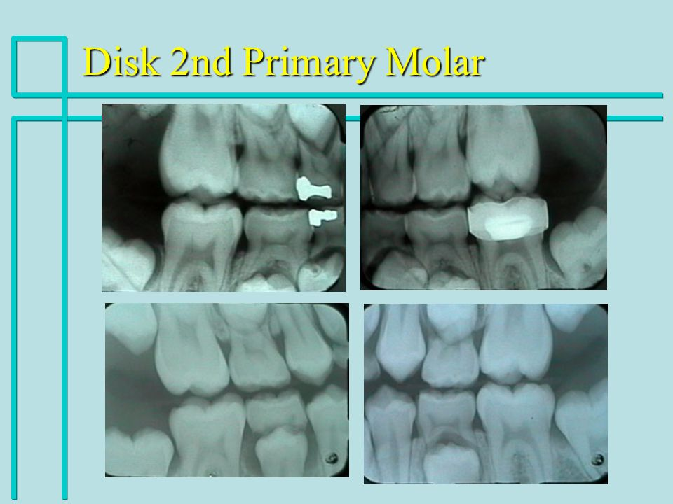 Disk 2nd Primary Molar
