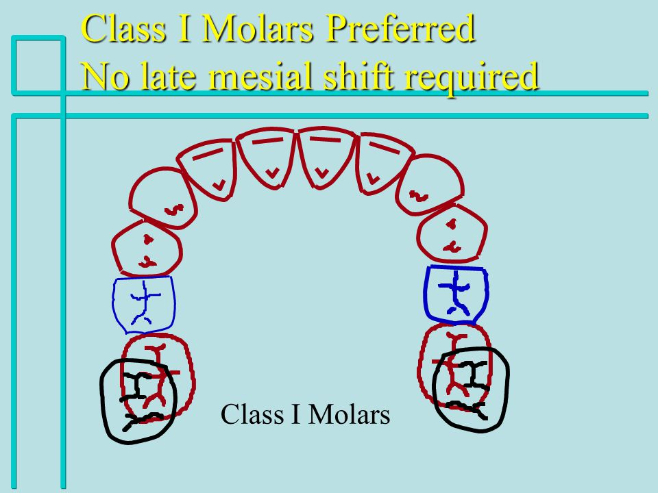 Class I Molars Preferred No late mesial shift required