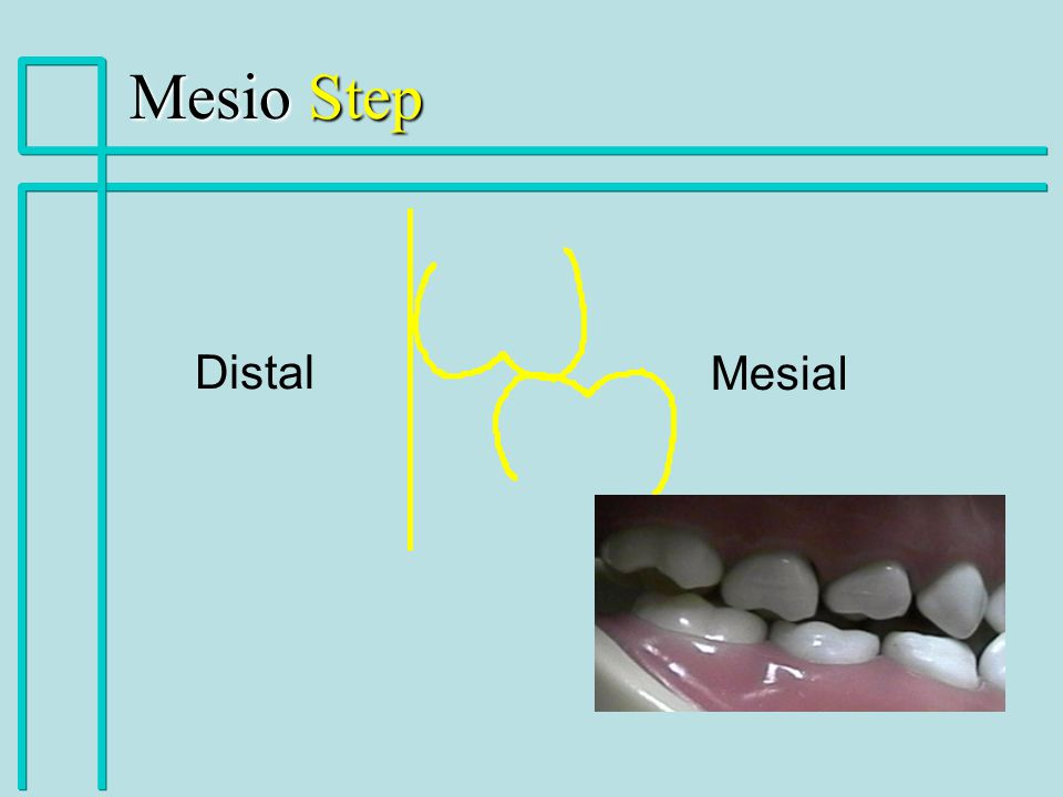 Mesio Step Distal Mesial