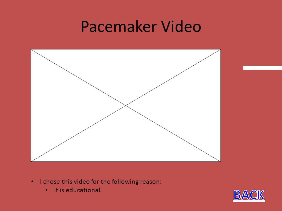 Pacemaker Video BACK I chose this video for the following reason: