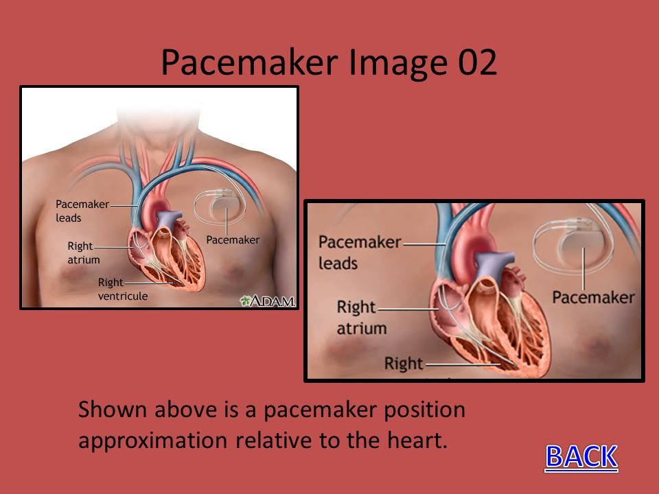Pacemaker Image 02 Shown above is a pacemaker position approximation relative to the heart. BACK