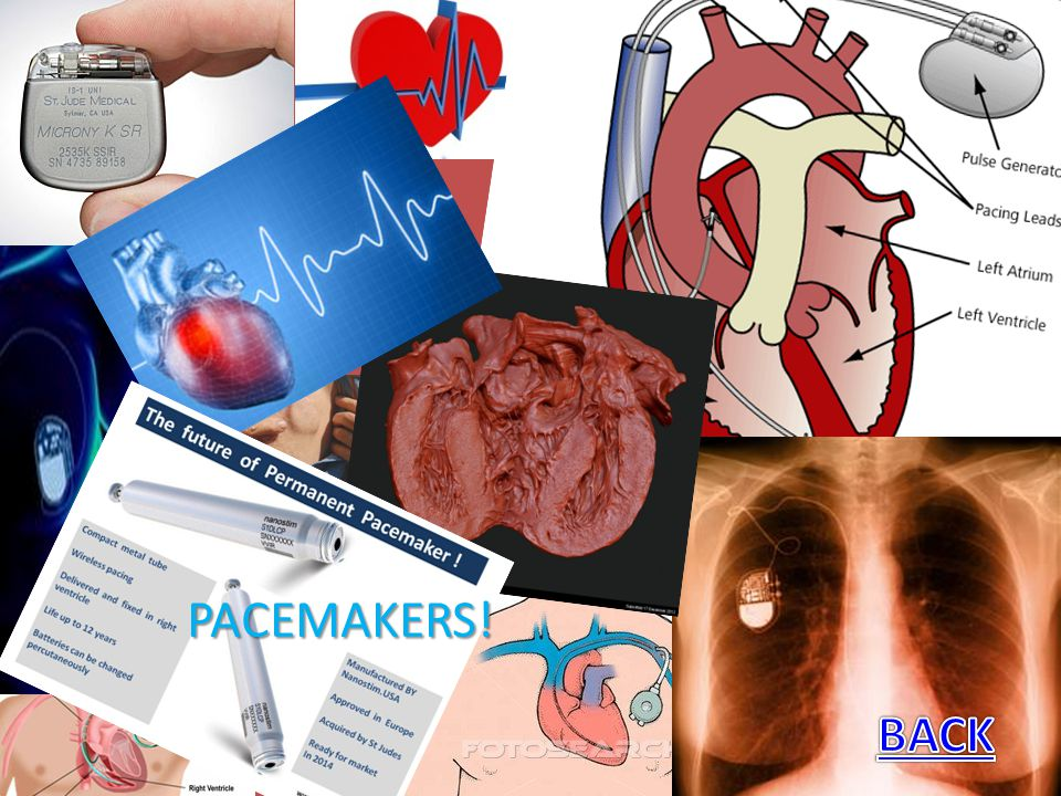 PACEMAKERS! BACK