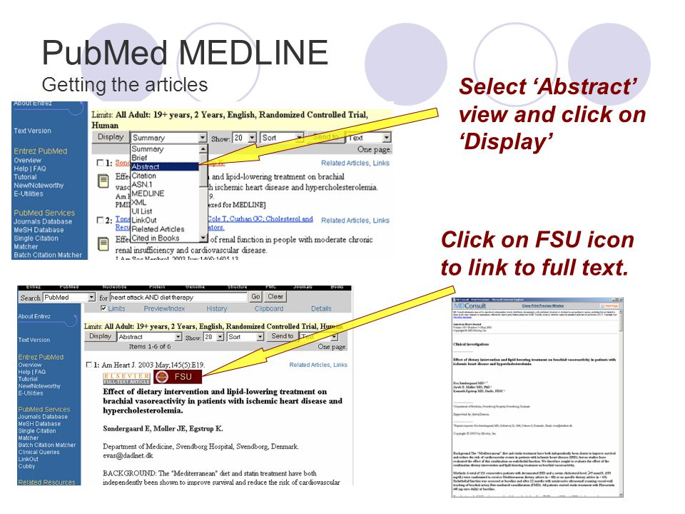 PubMed MEDLINE Getting the articles