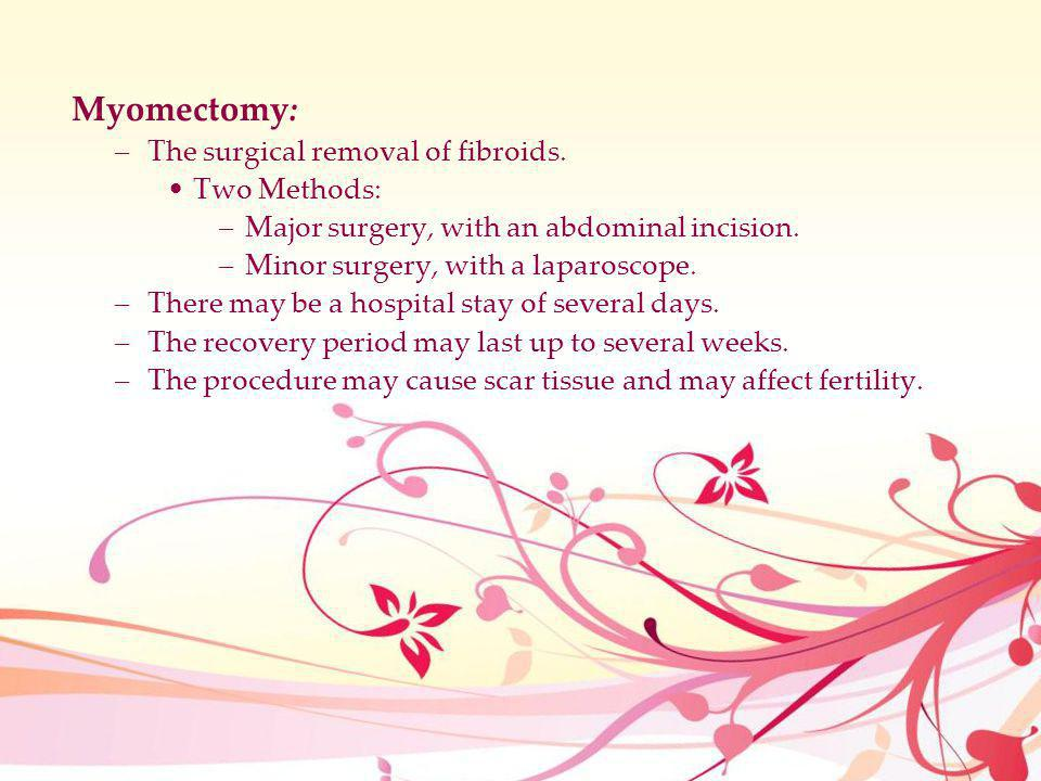 Myomectomy: The surgical removal of fibroids. Two Methods:
