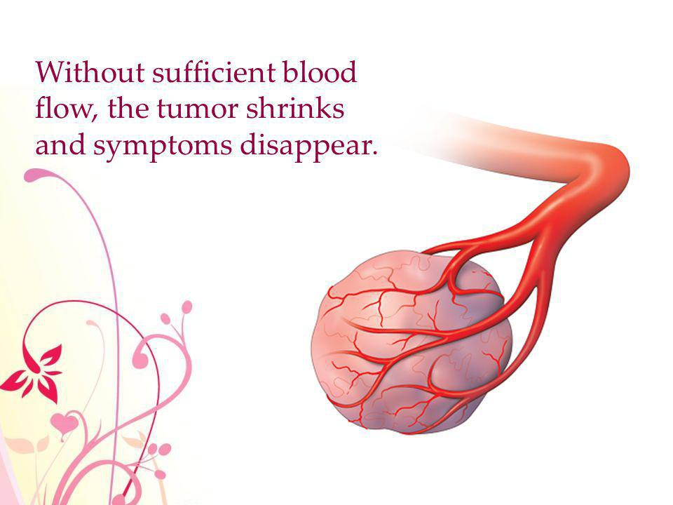 Without sufficient blood flow, the tumor shrinks and symptoms disappear.