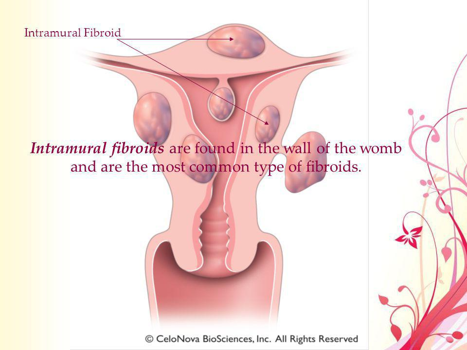 Intramural Fibroid Intramural fibroids are found in the wall of the womb and are the most common type of fibroids.