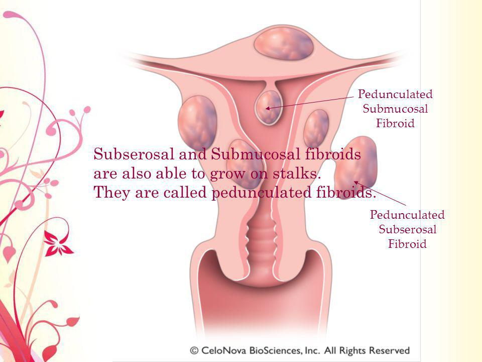 Pedunculated Submucosal Fibroid