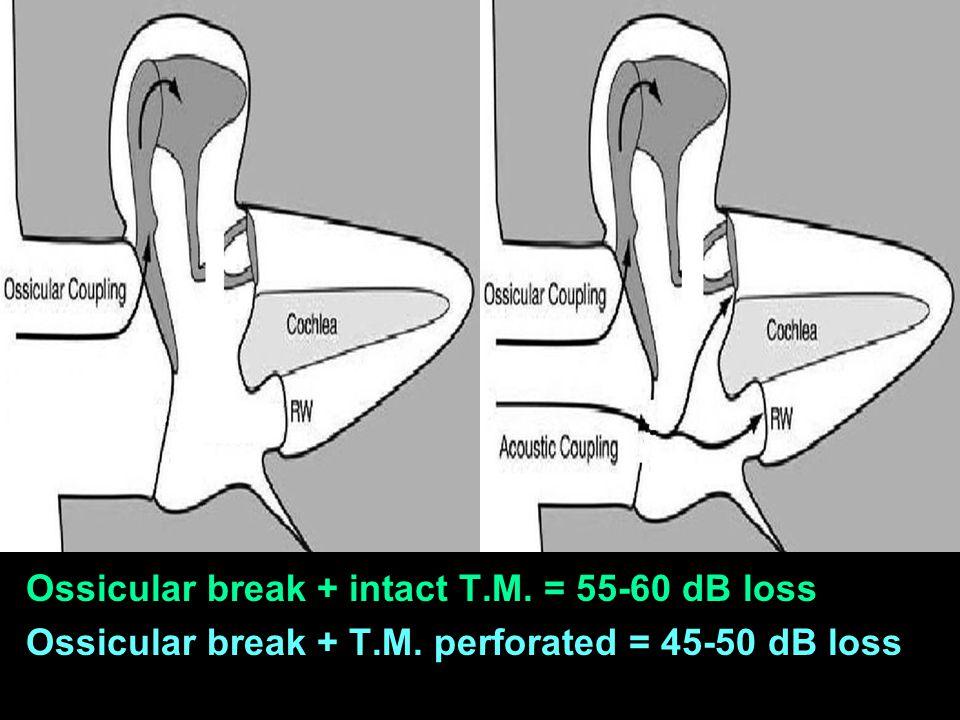 Ossicular break + intact T.M. = 55-60 dB loss