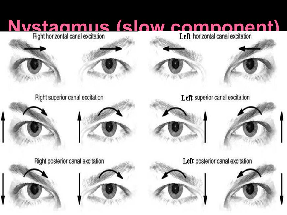 Nystagmus (slow component)