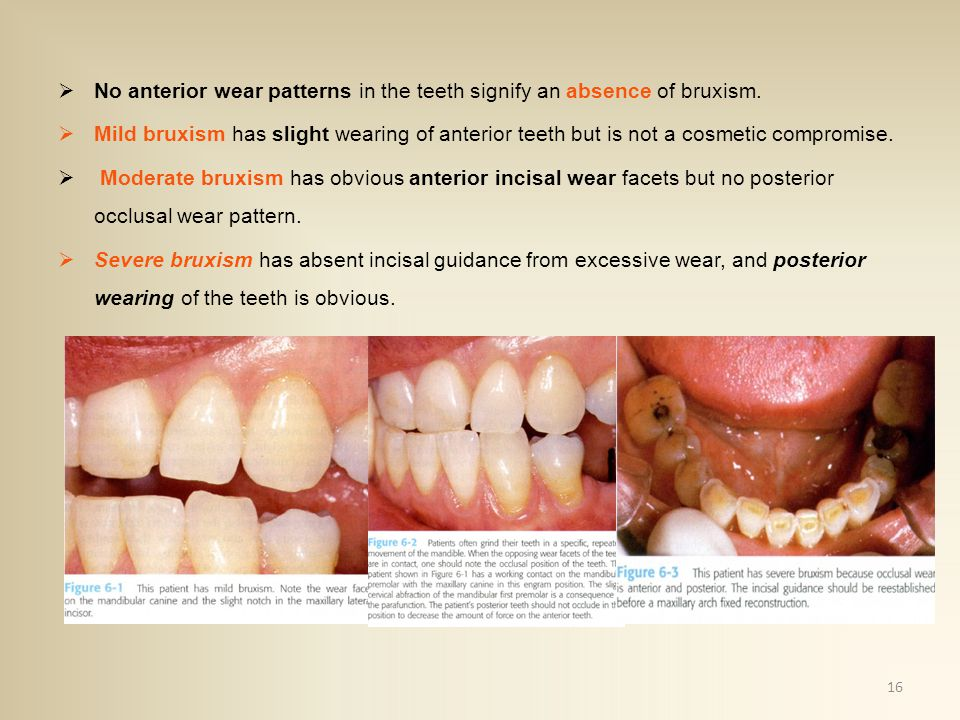 No anterior wear patterns in the teeth signify an absence of bruxism.