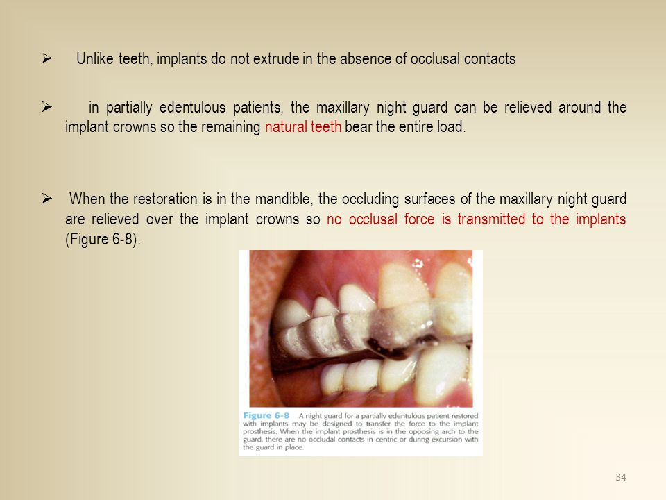 Unlike teeth, implants do not extrude in the absence of occlusal contacts