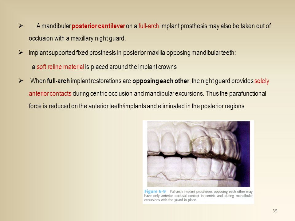 A mandibular posterior cantilever on a full-arch implant prosthesis may also be taken out of occlusion with a maxillary night guard.