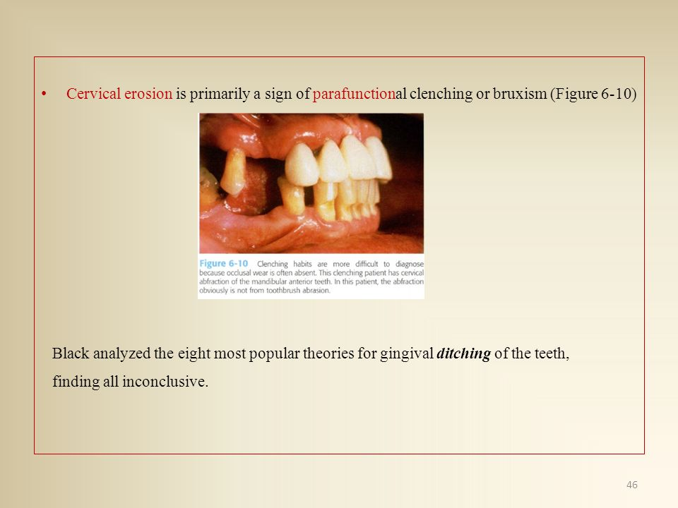 Cervical erosion is primarily a sign of parafunctional clenching or bruxism (Figure 6-10)
