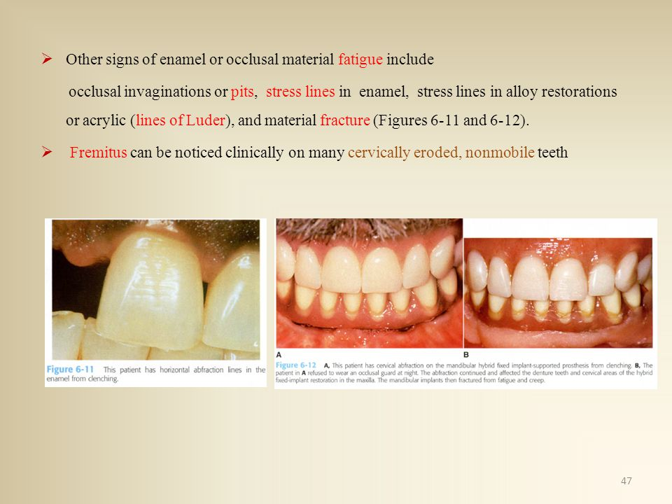Other signs of enamel or occlusal material fatigue include