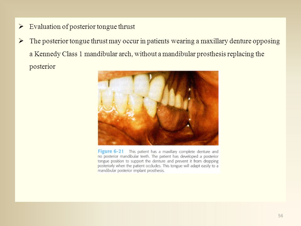 Evaluation of posterior tongue thrust