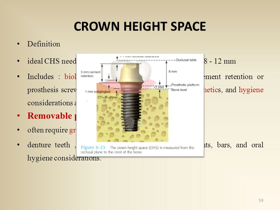 CROWN HEIGHT SPACE Removable prostheses Definition