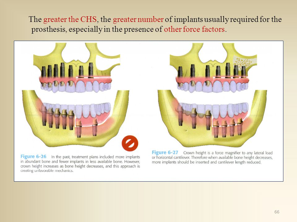 The greater the CHS, the greater number of implants usually required for the prosthesis, especially in the presence of other force factors.