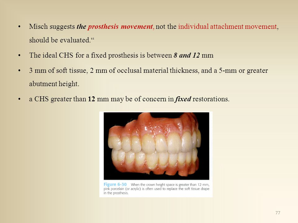 Misch suggests the prosthesis movement, not the individual attachment movement, should be evaluated.