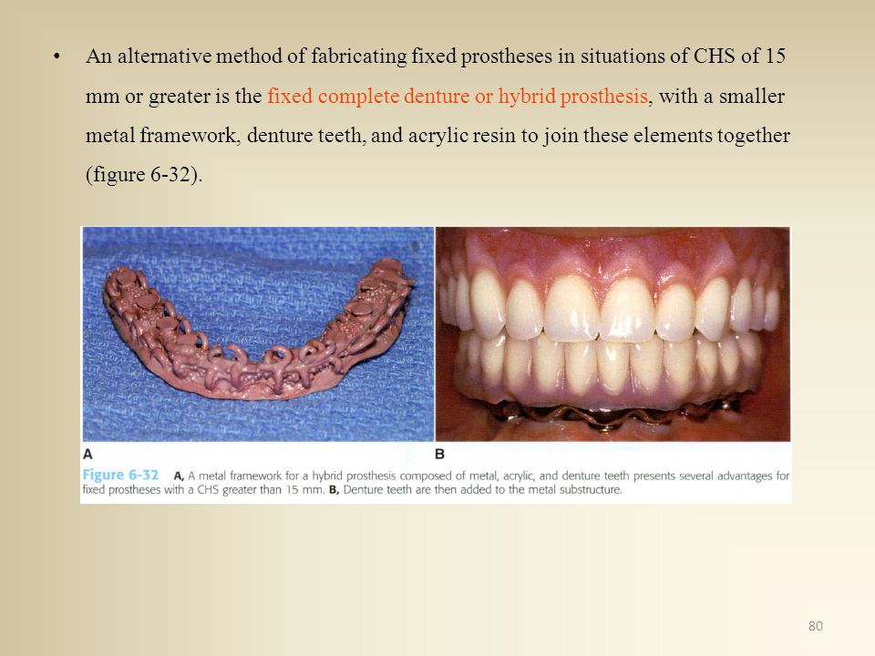 An alternative method of fabricating fixed prostheses in situations of CHS of 15 mm or greater is the fixed complete denture or hybrid prosthesis, with a smaller metal framework, denture teeth, and acrylic resin to join these elements together (figure 6-32).