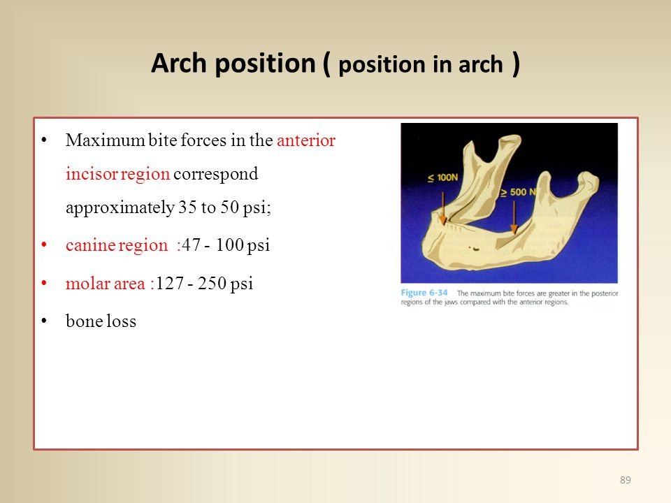 Arch position ( position in arch )