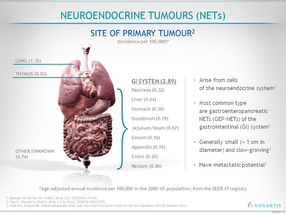 Neuroendocrine Tumours (NETs)
