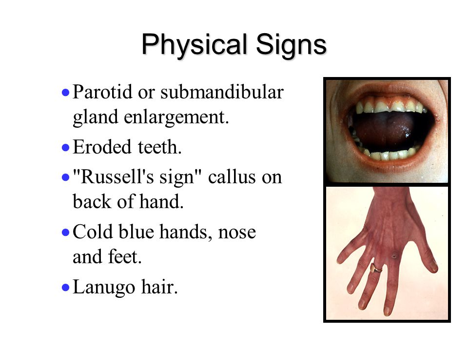 Physical Signs Parotid or submandibular gland enlargement.