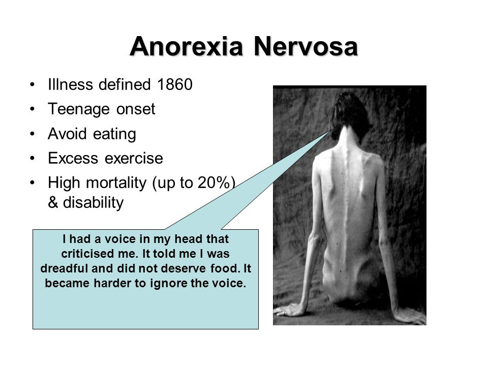 Anorexia Nervosa Illness defined 1860 Teenage onset Avoid eating