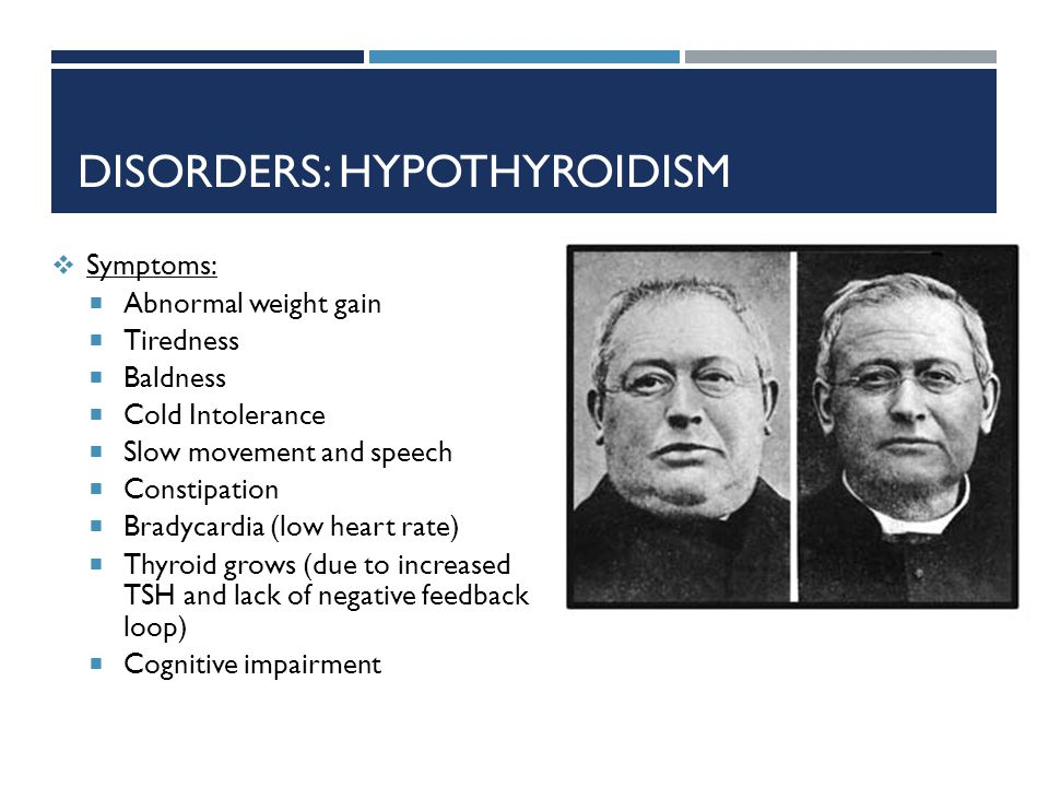 Disorders: hypothyroidism