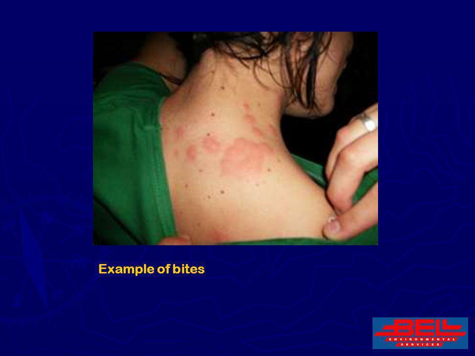 Example of bites