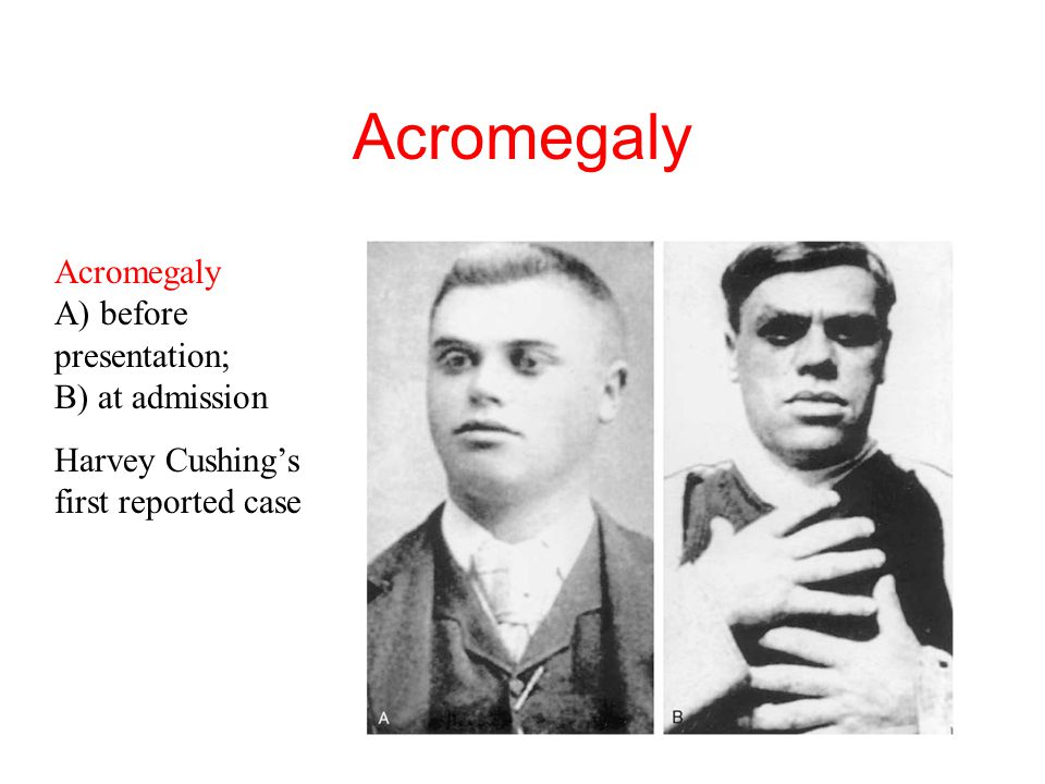 Acromegaly Acromegaly A) before presentation; B) at admission