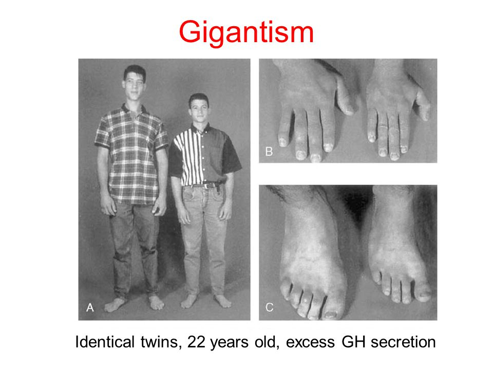 Gigantism Identical twins, 22 years old, excess GH secretion