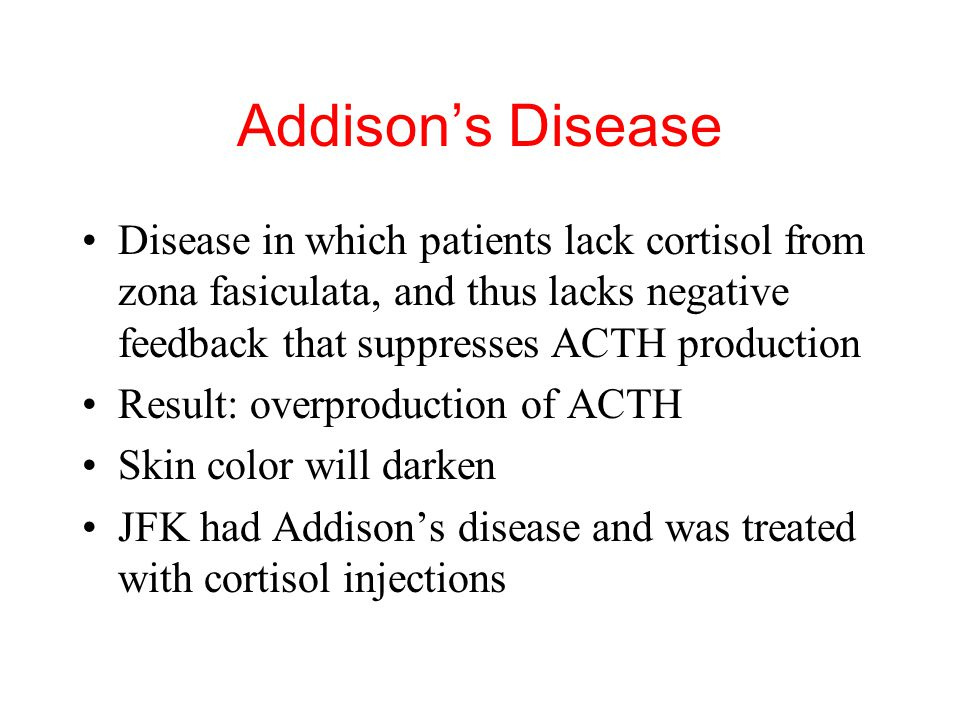 Addison's Disease Disease in which patients lack cortisol from zona fasiculata, and thus lacks negative feedback that suppresses ACTH production.