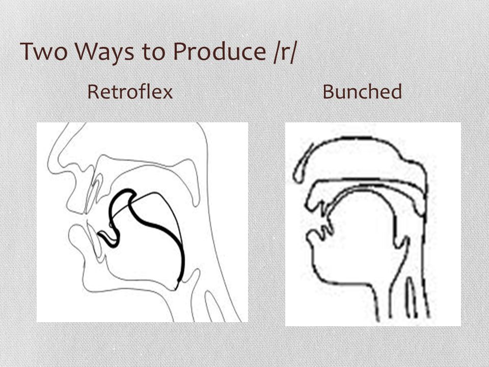 Two Ways to Produce /r/ Retroflex Bunched