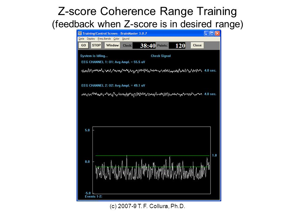 Z-score Coherence Range Training (feedback when Z-score is in desired range)