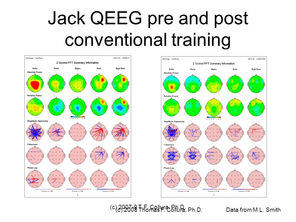 Jack QEEG pre and post conventional training